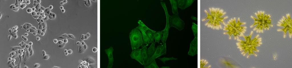 HeLa-cells-U2OS-Micrasterias
